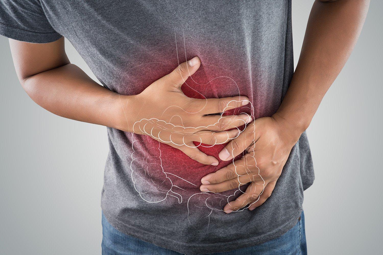 CONITEC disponibiliza novo PCDT para colite ulcerativa