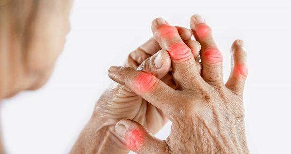 Ministério da Saúde divulga atualização do 'PCDT para Artrite Reumatoide'