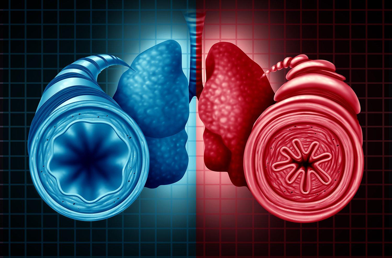 Conitec recomenda incorporação de mepolizumabe para asma grave